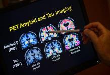 Pfizer ocultó que uno de sus fármacos podría prevenir Alzhéimer