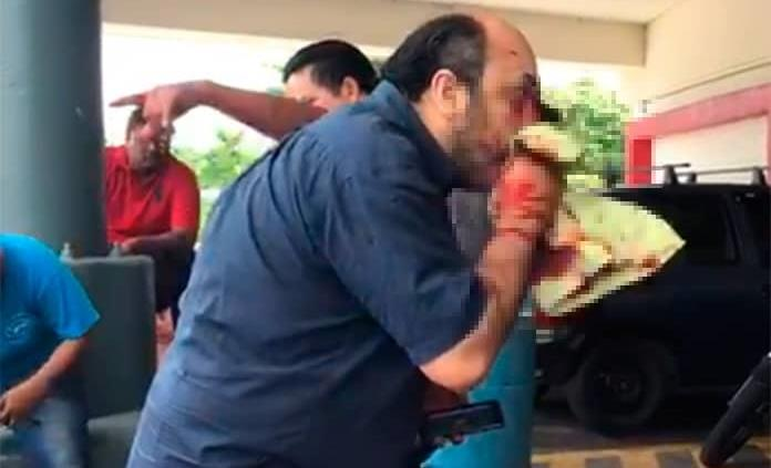 Dan prisión preventiva a hombre que clavó cuchillo por un cajón de estacionamiento en Veracruz