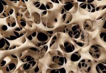 Mujeres, principales víctimas de osteoporosis