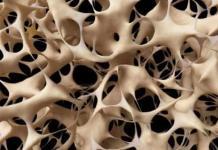 Confinamiento por COVID-19 podría aumentar fracturas por osteoporosis