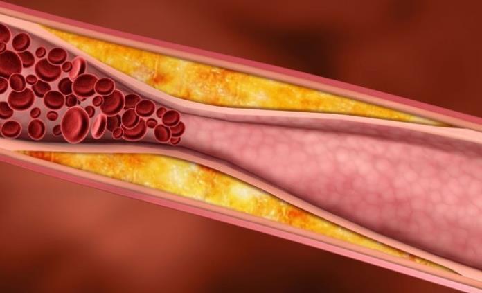 Dormir con la luz prendida aumenta de manera significativa el riesgo de aterosclerosis, revela estudio
