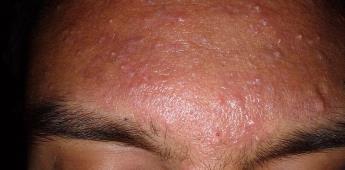 Remedios caseros o productos milagro agravan cuadro clínico de acné: especialista